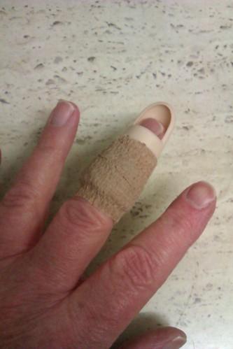 Mallet finger in splinter ...
