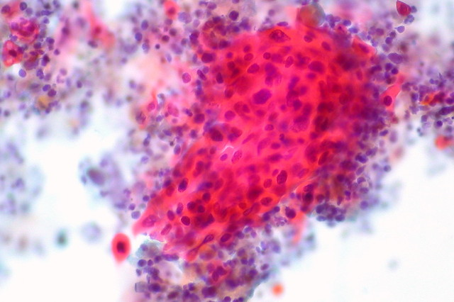 Squamous Cell Carcinoma, Bronchial Washing, Pap Stain ...