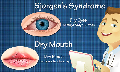 What Do We Know About Sjorgen's Syndrome And Dry Mouth?