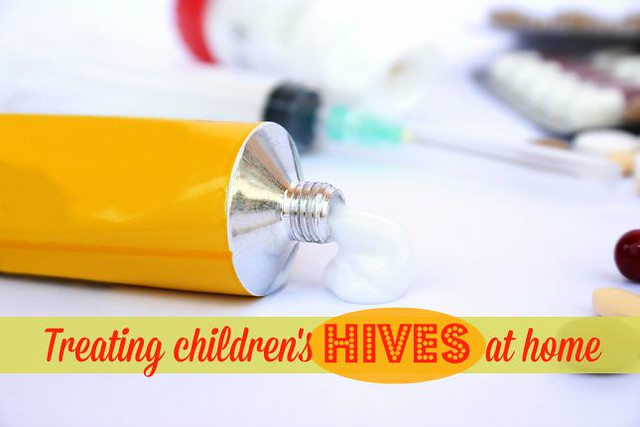 Treating children's hives