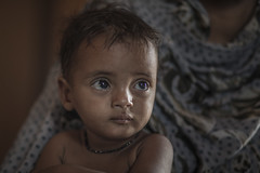 A region where malnutrition is prevalent