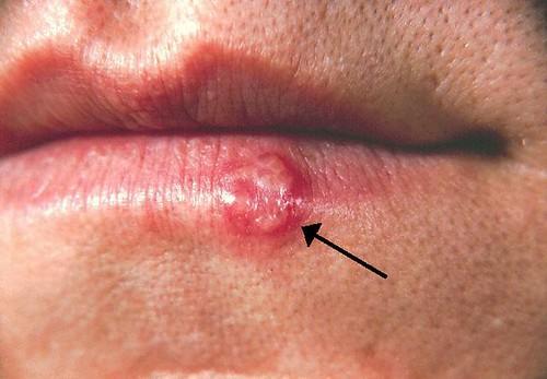 mengobati herpes