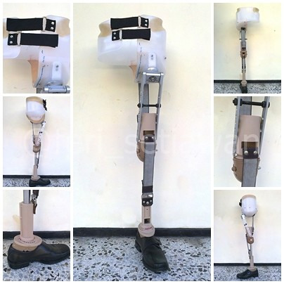 Hip Disarticulation Prosthetic http://www.flickr.com/photos/47518661@N08/7692205232/