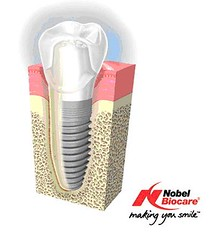 Dental Implants Long Island | Great Neck
