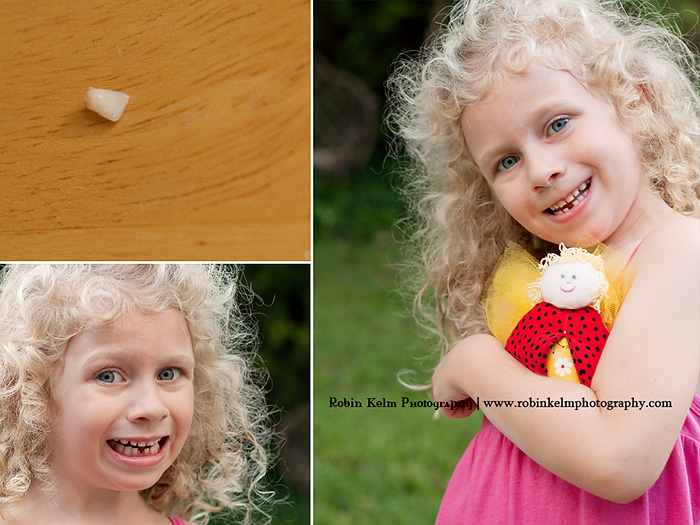 1st lost tooth web
