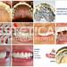 laboratorio_de_protese_dentaria_cad_cam-699