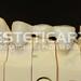 laboratorio_de_protese_dentaria_cad_cam-304