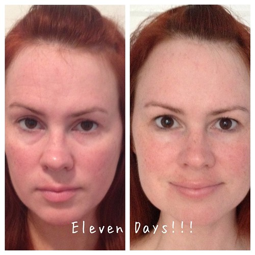Eleven Days using Rodan and Fields anti-aging regimen