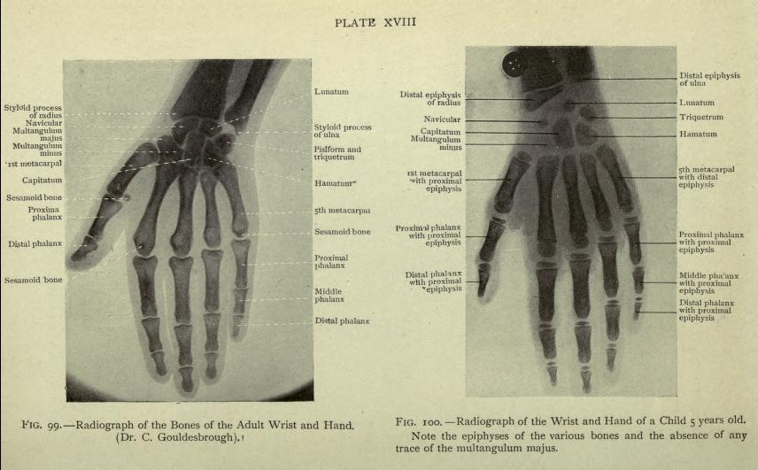 Anatomically Labelled X Ray Images 1920 The Public Domain Review