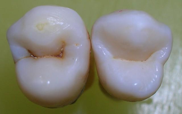 Caries dental. ¿Qué son y cómo se previenen? - Dr. Juan Balboa