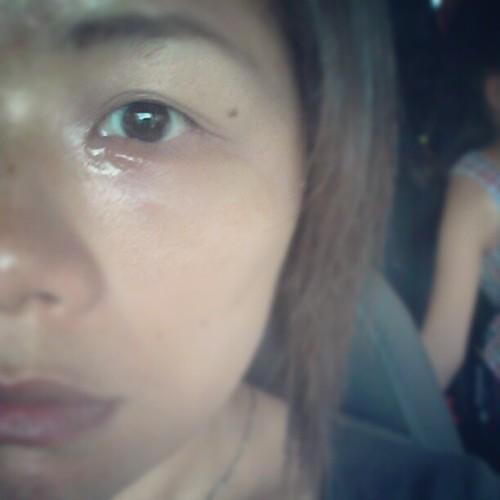 20120818 醫生說 我的針眼來勢洶洶 是針眼+蜂窩性組織炎。要先吃抗生素三天 再來割。(沒錯!要開刀)