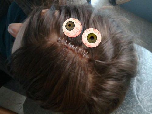 Shaved heads stapled