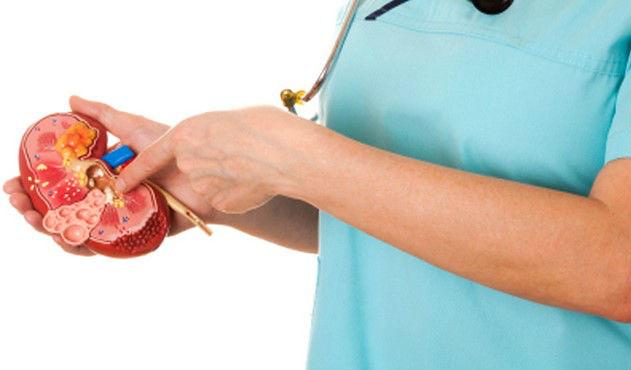 Obat Radang Ginjal Nefritis