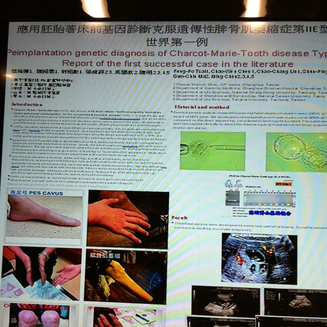 世界第一例  cmt  tsrm  2012 應用胚胎著床前基因診斷克服遺傳性腓骨肌萎縮症第IIE型:世界第一例 Preimplantation genetic diagnosis of Charcot-Marie-Tooth disease Type IIE: Report of the first successful case in the literature  TSRM台灣生殖醫學會2012年會論文發表接受通知 受文者:  蔡鋒博 醫師 事  由:  本年度年會論文發表之徵文您的Abstract