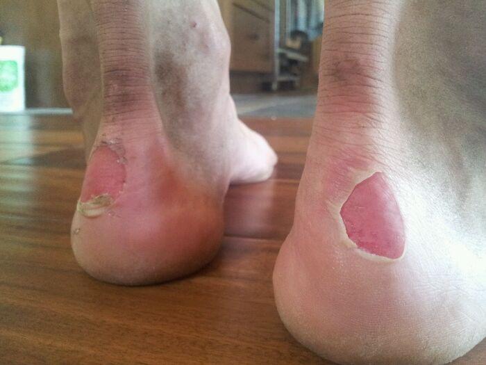 Dave's heels