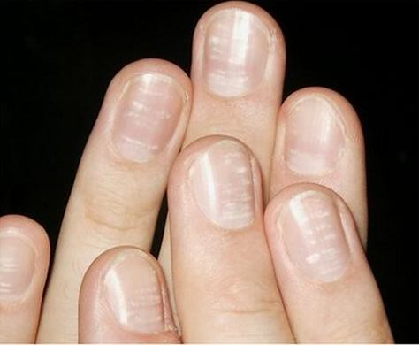 White spots on nails has a cure