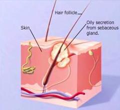 acne-jerawat
