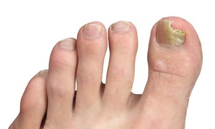 Natural remedies to cure fungal toenails