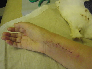 Wrist - stitches removed