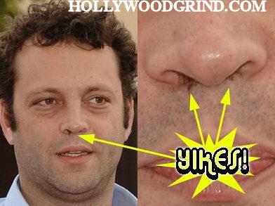 Nose Hair Cialis