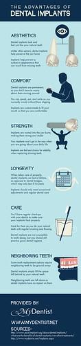 The Advantages of Dental Implants