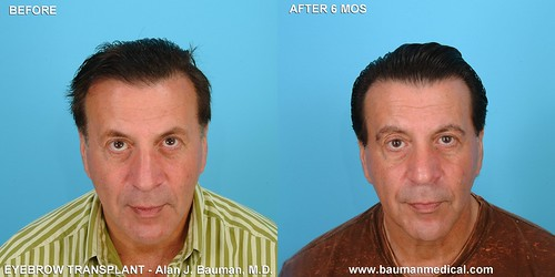 male-eyebrow-transplant_MK1_DrBauman eyebrow transplant transplantation by dr alan bauman florida before after