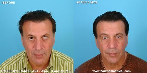 8053815139 a83e39d0e5 Eyebrow Scar Hair Transplant