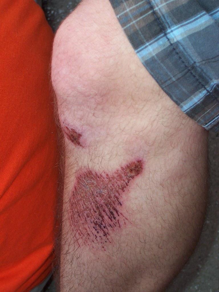 Sidewalk Collision