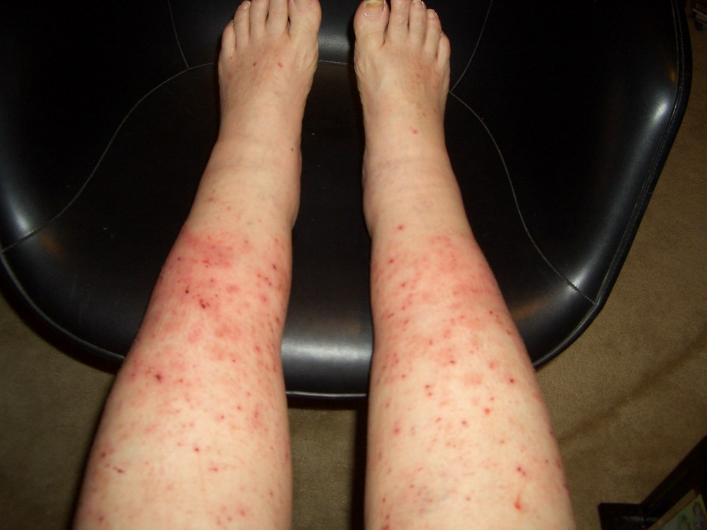 Allergic reaction rash 001
