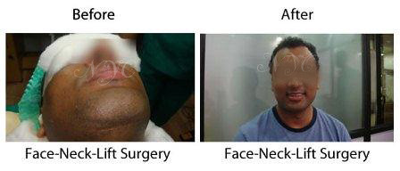 before-after-face-neck-lift