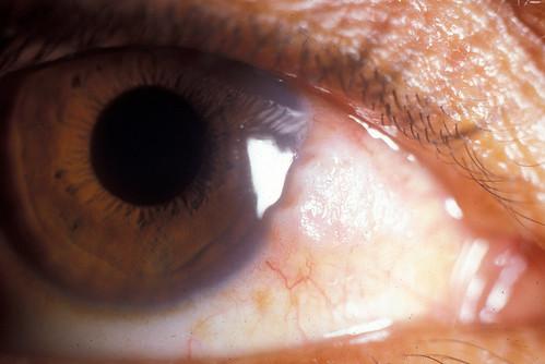 眼が痛かったので眼科を受診してきたよ。