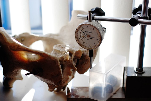 Pelvis and other orthopaedic items on a windowsill