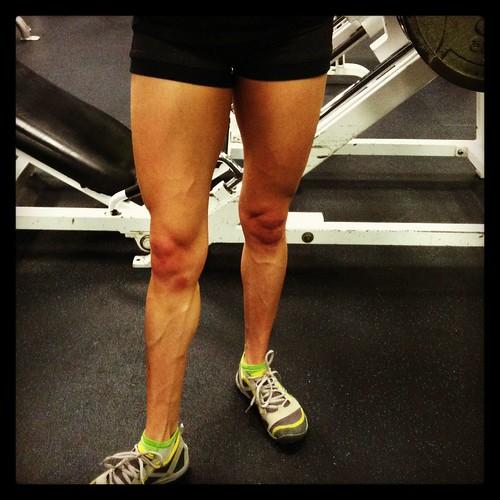 Leg mucles