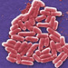 Colorized scanning electron micrograph of E. coli.