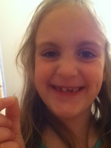 Butterfly missing tooth May 2012
