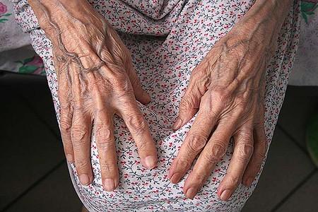 Натруженные руки