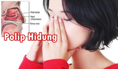 Obat Polip Hidung Resep Dokter