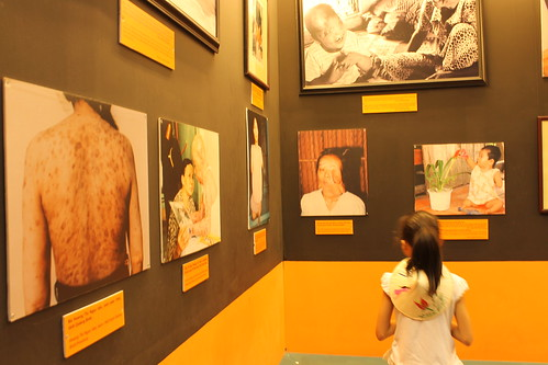 a young girl staring photo of victims's agent orange