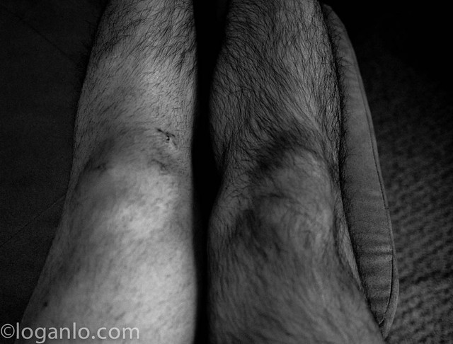 Knobby knees after ACL surgery