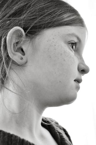 earlobe
