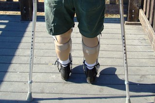 Leg braces and crutches from the back.