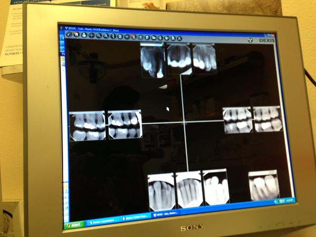 Last minute dental treatment