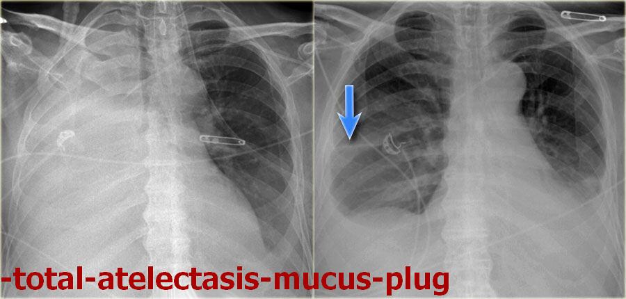 -total-atelectasis-mucus-plug_result