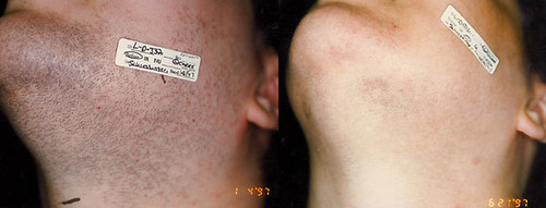Is laser hair removal permanent? Dr. Joel Schlessinger advises.