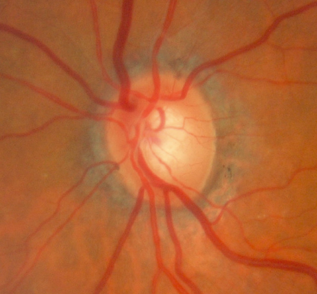 Optic Nerve Cupping: Glaucomatous Optic Nerve Head Of A Patient With