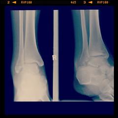 hand(0.0), nose(0.0), arm(0.0), chest(0.0), abdomen(0.0), trunk(0.0), human body(0.0), jaw(0.0), organ(0.0), radiography(1.0), medical radiography(1.0), x-ray(1.0), limb(1.0), medical(1.0), medical imaging(1.0), radiology(1.0),