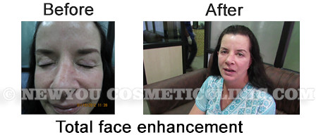 before-after-total-face-enhancement
