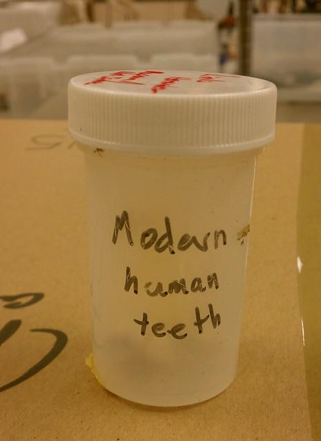 HUMAN TEETH!