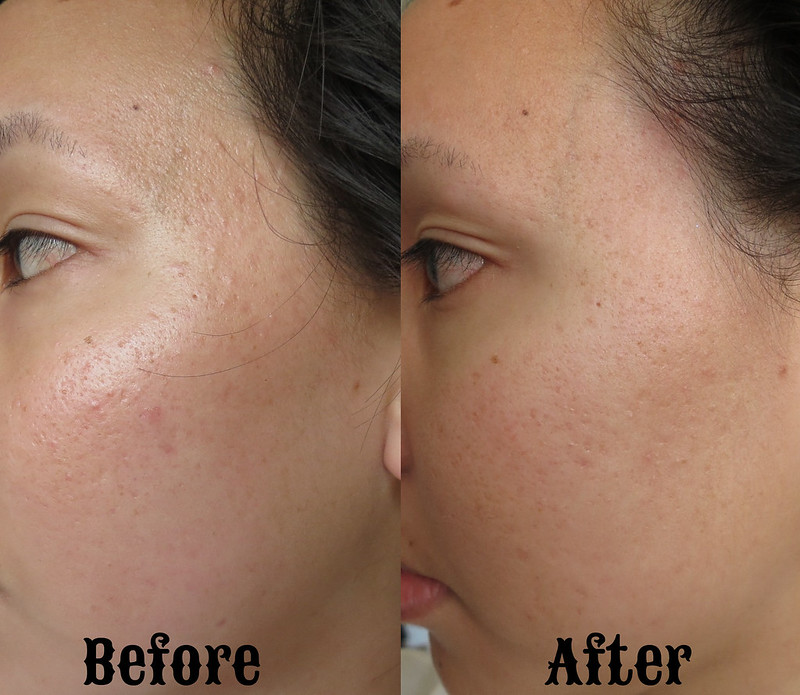 Futurederm before and after