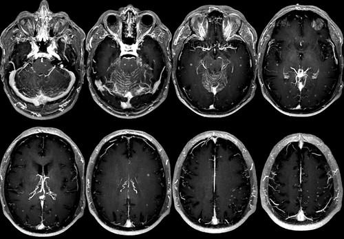 Carcinomatosis meníngeaMIP